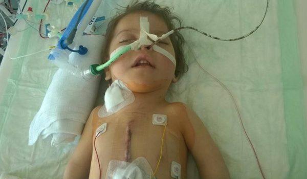 Mala Lamija treba našu pomoć: Nova operacija omogućit će joj da jede svojim ustima