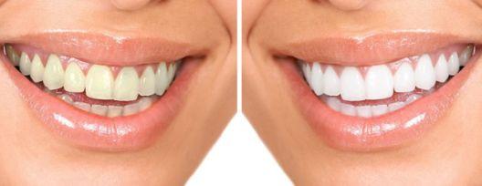 Domaća radinost: Napravite pastu za izbjeljivanje zuba