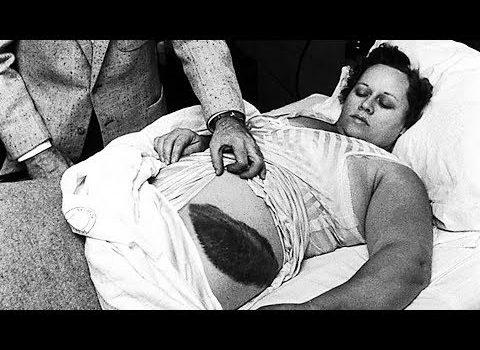 Jedina osoba na svijetu koju je pogodio meteorit
